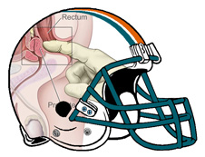 Prostate Exam Fantasy Football Helmet